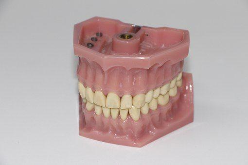 Korona zębowa jako sposób na złamany lub przebarwiony ząb